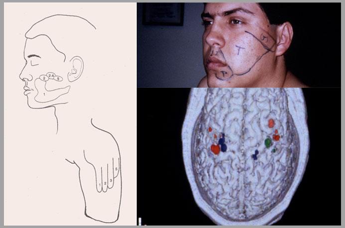 estímulo no bra,o e na face causam sensa,òes em áreas específicas da mão fantasma From Dr. V.S Ramachandran's Slides. Copyright V.S. Ramachandran http://mindbind.wordpress.com/2007/11/07/neuroscience-200bc/