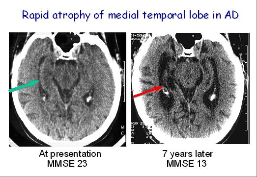 RMN craniana corte axial, mostrnado atrofia de predomínio temporal medial no decorrer da evolução da doença