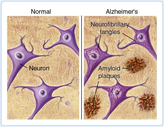 Acúmulo extra-celular de proteína beta-amilóide