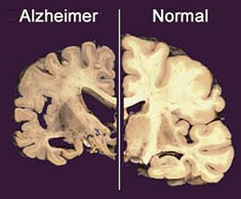 corte coronal do cérebro