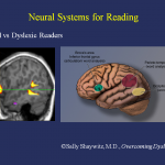 dyslexia-imagem extraída do site http://www.yalescientific.org/2011/04/the-paradox-of-dyslexia-slow-reading-fast-thinking/