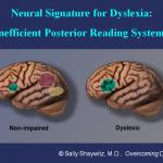 dyslexia-4