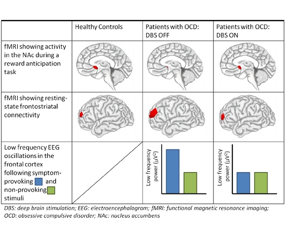 Deep brain stimulation restores frontostriatal network activity in obsessive-compulsive disorder Martijn Figee, Judy Luigjes, Ruud Smolders, Carlos-Eduardo Valencia-Alfonso, Guido van Wingen, Bart de Kwaasteniet, Mariska Mantione, Pieter Ooms, Pelle de Koning, Nienke Vulink, Nina Levar, Lukas Droge, Pepijn van den Munckhof, P Richard Schuurman, Aart Nederveen, Wim van den Brink, Ali Mazaheri, Matthijs Vink & Damiaan Denys Nature Neuroscience 16, 386–387 (2013) doi:10.1038/nn.3344 Received 13 September 2012 Accepted 28 January 2013 Published online 24 February 2013 Little is known about the underlying neural mechanism of deep brain stimulation (DBS). We found that DBS targeted at the nucleus accumbens (NAc) normalized NAc activity, reduced excessive connectivity between the NAc and prefrontal cortex, and decreased frontal low-frequency oscillations during symptom provocation in patients with obsessive-compulsive disorder. Our findings suggest that DBS is able to reduce maladaptive activity and connectivity of the stimulated region.