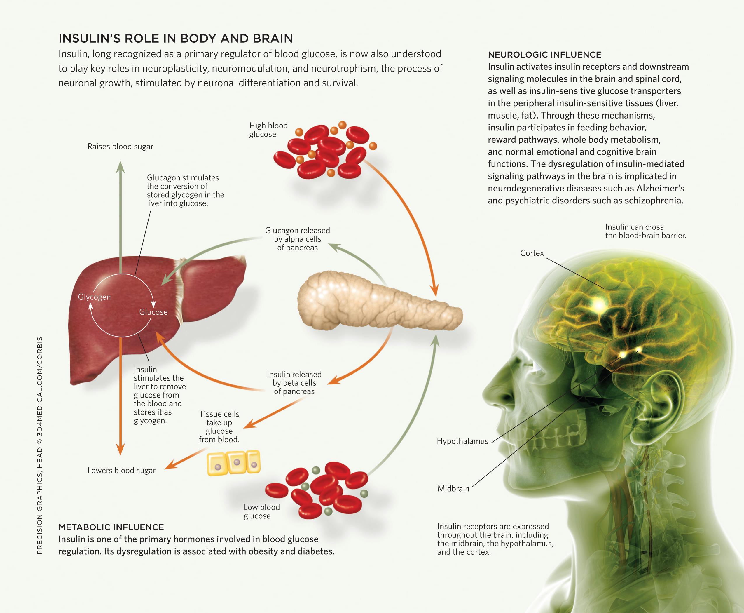 Insulin_infograph