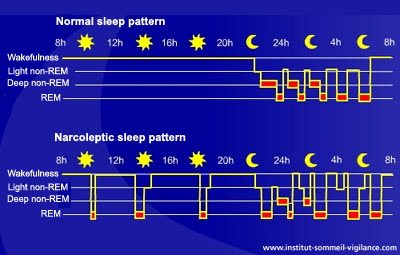 narcolepsy 3