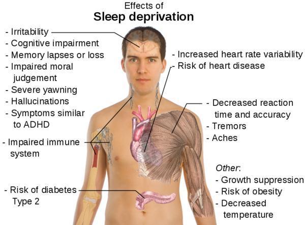 sonos sleep-deprivation-effects