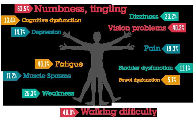 Sintomas comuns na esclerose múltipla
