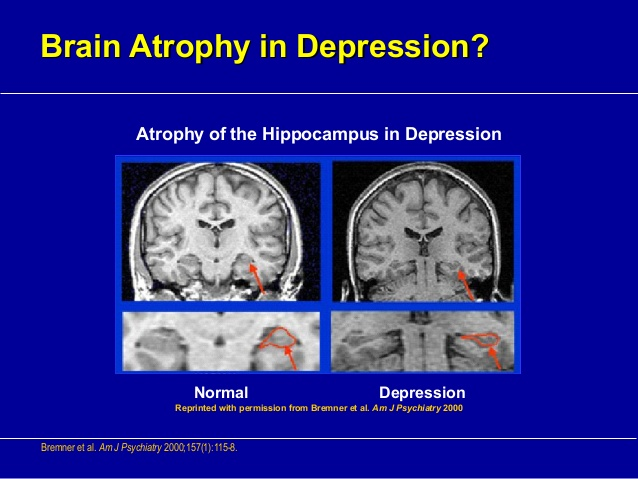 http://pt.slideshare.net/hanipsych/hanipsych-biology-of-depression