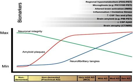biomarkers-alzheimer
