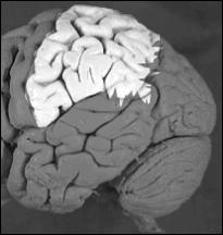cortex parietal