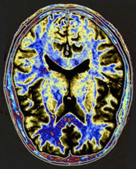 Neurorradiologia: apresentação e discussão de casos clínicos-dia 07 de outubro de 2018-15h00-18h00. IV International Grand Dourados Neuroscience Symposium-October, 4th-7th, 2017-http://neurocienciasdourados.com.br/index.html