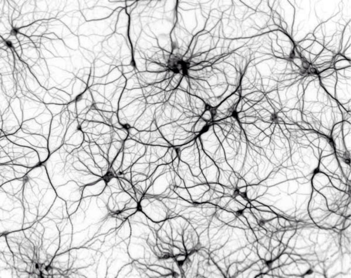 Epilepsia: cognição, ansiedade, depressão, alterações do sono e deficiência de vitamina D